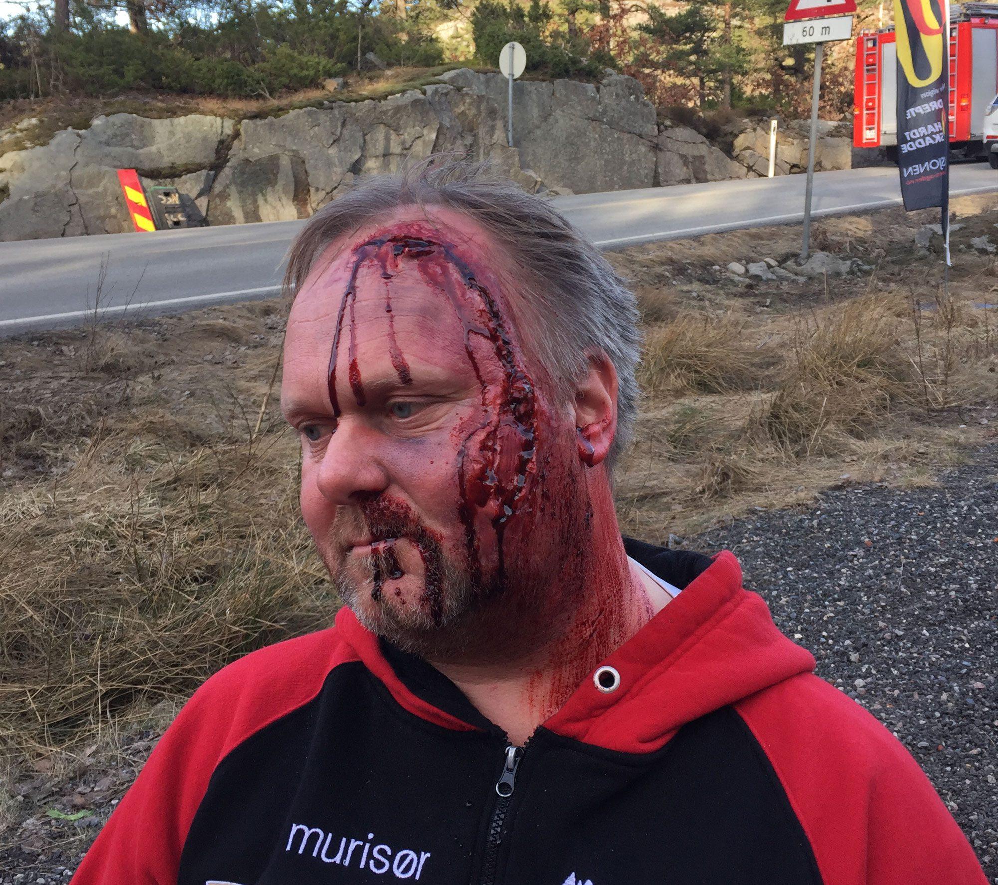 Mann sminket med hodeskade for en førstehjelpsøvelse